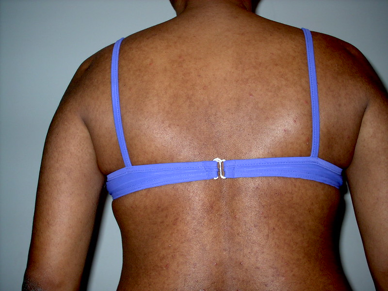 Mai Bikini Top me Pichese. (Me in Bikini Top from Behind.)