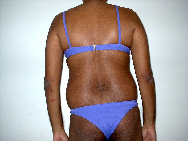 Mai Bikini me Pichese. (Me in Bikini from Back.)